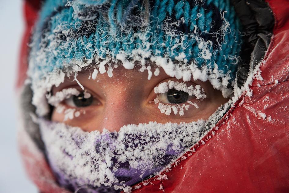 frozen nose.jpg